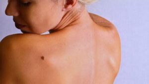 melanoma tumore